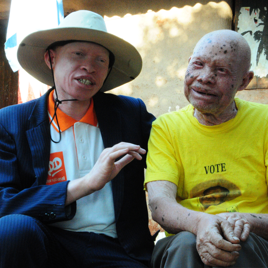 Peter Ogik in conversation with a person with albinism
