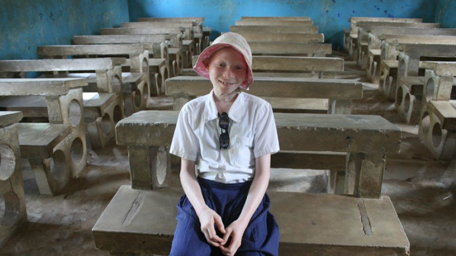 A girl with albinism in an empty classroom
