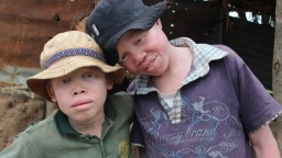 John and Junior, two children with albinism
